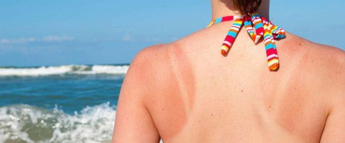girl in bathers showing tan lines on her back by the beach